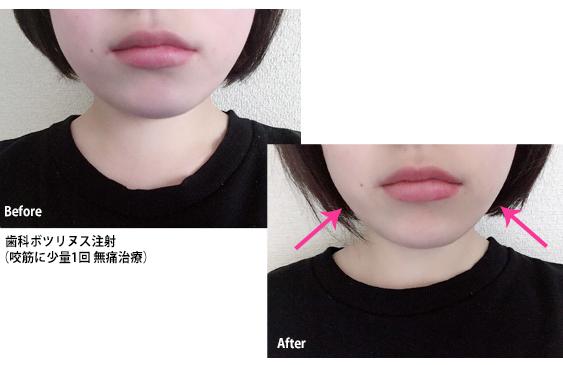 歯科ボツリヌス注射の治療例