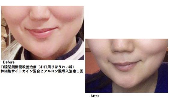 歯科鍼灸療法(口腔機能改善治療)