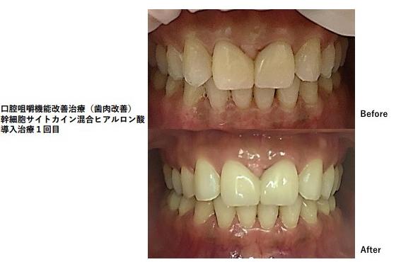 歯科幹細胞サイトカイン導入治療例