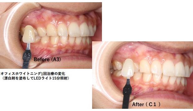 歯 口臭予防ブリーチング治療
